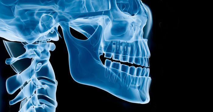 orthognathic-jaw